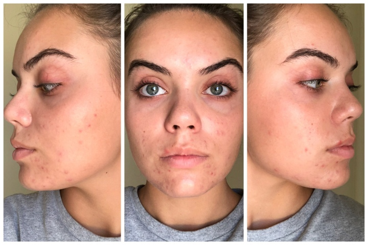 How I Cleared My Skin In Two Months Sarah Castro